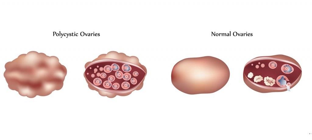 bigstock-Polycystic-ovary-and-normal-ov-19335917